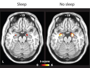 The impact of sleep deprivation on emotional brain reactivity and functional connectivity.